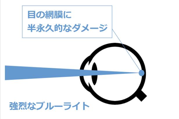 ブルーライトが目にダメージを与えるメカニズム